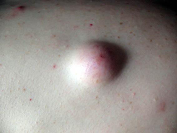 idiopatia